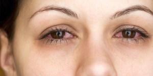 Uveítis: más del 30% de los pacientes tarda 3 meses en consultar