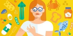 Cuáles son las diferencias entre intolerancia y alergia alimentaria