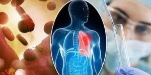 Los desafíos del sistema de salud frente al manejo del cáncer