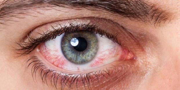 Resultado de imagen para sindrome ojo seco